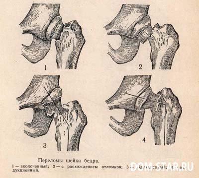 как срастается кость после перелома фото